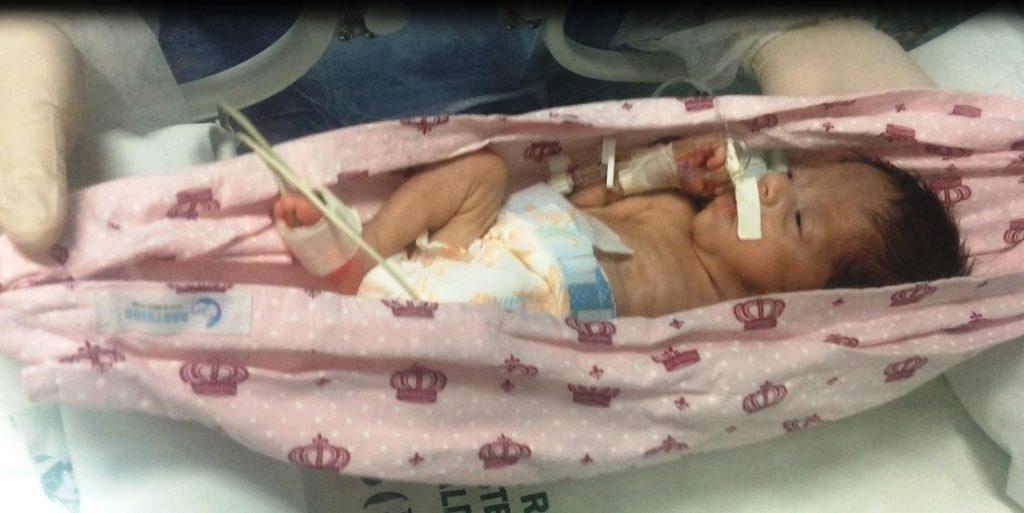 Programa terapêutico do Hospital Regional do Sudeste do Pará implanta redes de balanço nas incubadoras da UTI neonatal