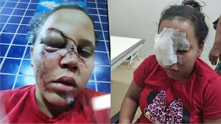 Uma mulher é agredida por ex-companheiro e rosto fica desfigurado