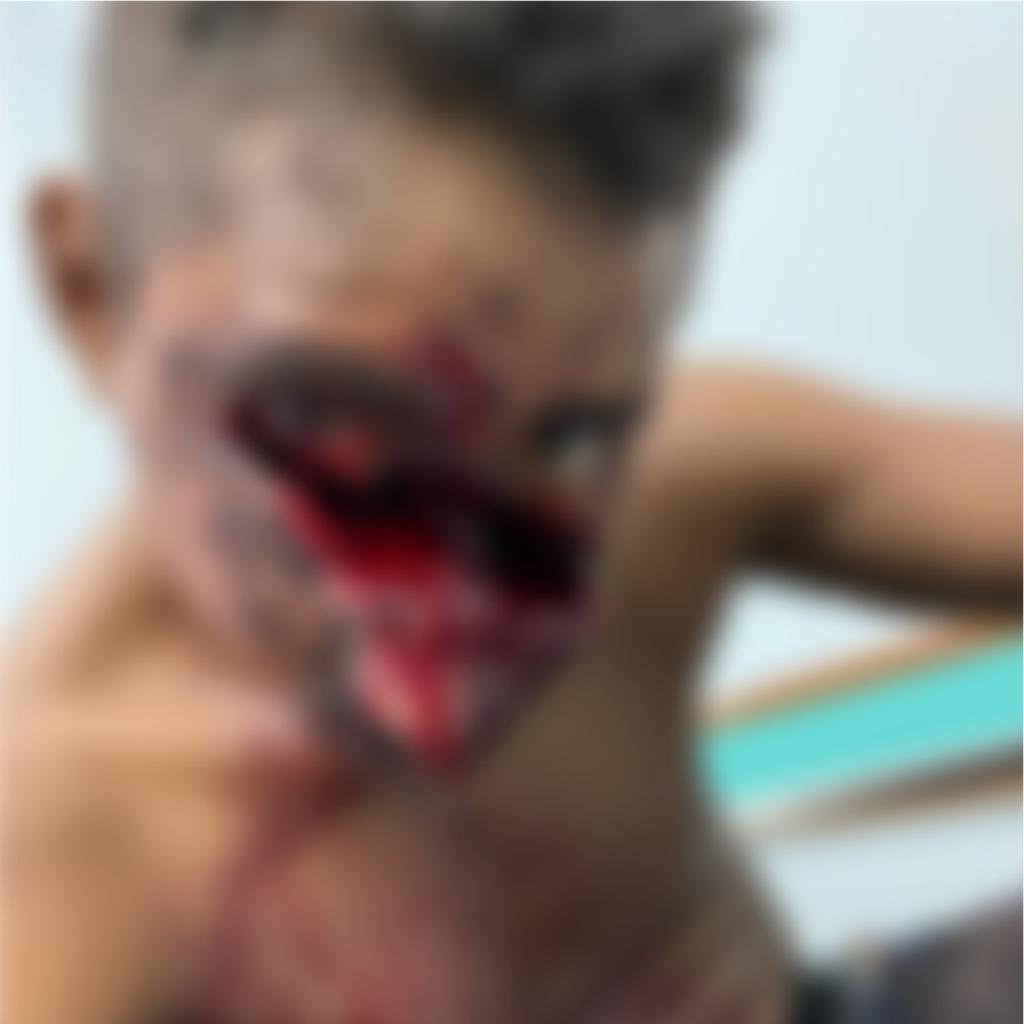 Homem mata outro com uma machadada no rosto