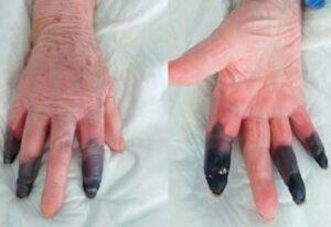 Idosa tem três dedos amputados após efeito incomum da Covid-19