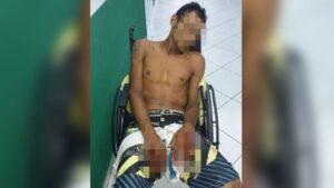 'Flanelinha' é baleado nas mãos por integrantes de 'tribunal do crime' no Pará